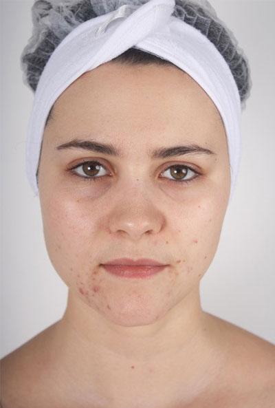 Nimue Skin Technology Skincare Before