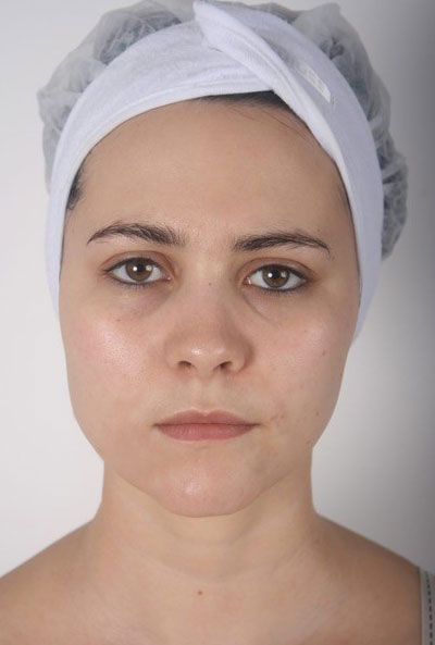 Nimue Skin Technology Skincare After
